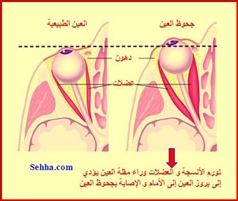 أمراض الغدد الصم Endocrine disorders Graves5