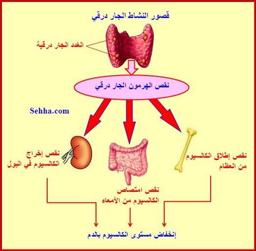 أمراض الغدد الصم Endocrine disorders Hypoparathyroidis5