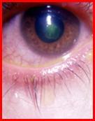 أعراض قرحة القرنية Corneal-Ulcer07