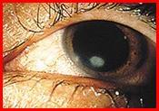 أعراض قرحة القرنية Corneal-Ulcer08