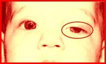 موسوعة متكامله عن امراض العين Lazy_eye4