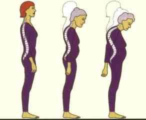 الشيخوخة و مشاكل المسنين الحركية Osteop1