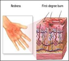 الإسعافات الأولية للحروق First aid for burns Burns-FA09