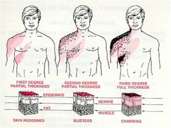 الإسعافات الأولية للحروق First aid for burns Burns-FA14