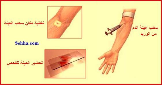 معلومات مهمة عن تحليل الدم. CBC02