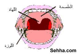 استئصال اللوزتين tonsillectomy.... Mouth