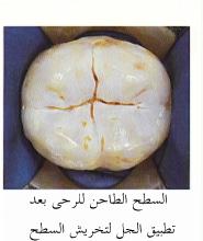 ملف كامل عن طب الأسنان بالصور  Seal_2