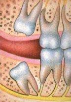ملف كامل عن طب الأسنان بالصور  Wisdom031