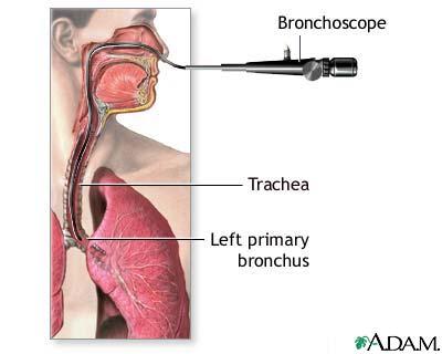 مناظير الجهاز التنفسي والبولي والتناسلي الأنثوي 9138