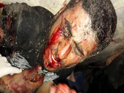 تنظيم داعش يواصل بغيه ... شهداء وجرحى بتفجير انتحاري بمقر لجيش الإسلام  076cf373adb42f3d372ba1d990492c42_M