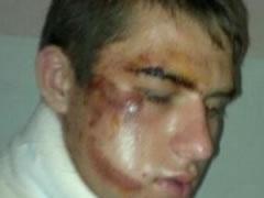 Maqedoni, rrihet barbarisht 18-vjecari shqiptar 1375092596-barbarisht