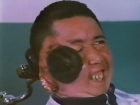 [Article] Edward Mordrake Chang-Tzu-Ping-original-video-two-face-head-visage-chinese-man