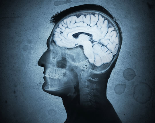 5 Elements of Western Diet Linked To Alzheimer's Disease Alzheimers-1