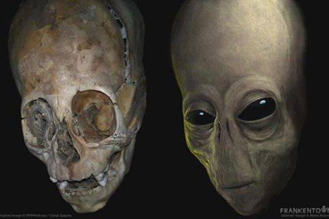 Australian Nurse Encounters A Human Hybrid In Peru? Alien-Elongated-Skull