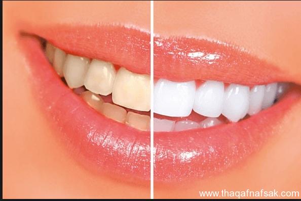 كيف تتمتع بأسنان ولثه صحيه؟ %D8%AB%D9%82%D9%81-%D9%86%D9%86%D9%81%D8%B3%D9%8310