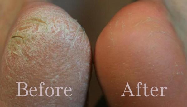 مشكلة تشقق القدمين ... الأسباب و العلاج Home-Made-Cream-For-Cracked-Heels-600x343