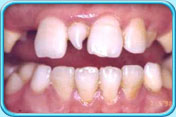 Oral apthology Section no.1 Kat_P_06