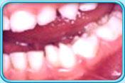Oral apthology Section no.1 Kat_p_08