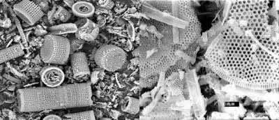 Punaises de lit ! - Page 2 Terre-de-diatomee
