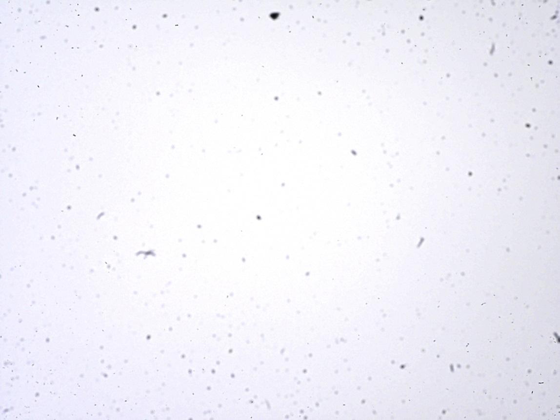 poussière poussière P1370482