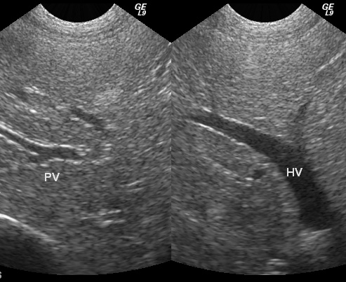 Ultrasound of Liver Pvhv