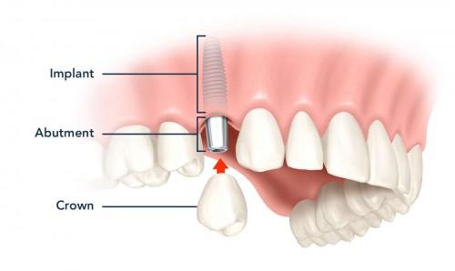Trồng răng implant ở cần thơ tại Nha khoa nào ? Nhakhoadongnam1