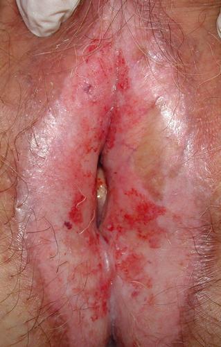 """Vulvodinia (impropriamente """"vestibolite vulvare"""") • Etiopatogenesi e semeiologia • bruciore vulvare, bruciore intimo • dolore vulvare •  prurito vulvare • Cistite •  Cistite Interstiziale (CI) • mastocita •  ipertono pavimento pelvico • VULVODINIA.INFO  Figure12"""