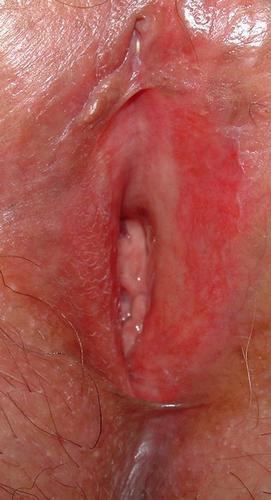 """Vulvodinia (impropriamente """"vestibolite vulvare"""") • Etiopatogenesi e semeiologia • bruciore vulvare, bruciore intimo • dolore vulvare •  prurito vulvare • Cistite •  Cistite Interstiziale (CI) • mastocita •  ipertono pavimento pelvico • VULVODINIA.INFO  Figure7"""