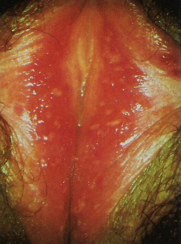 """Vulvodinia (impropriamente """"vestibolite vulvare"""") • Etiopatogenesi e semeiologia • bruciore vulvare, bruciore intimo • dolore vulvare •  prurito vulvare • Cistite •  Cistite Interstiziale (CI) • mastocita •  ipertono pavimento pelvico • VULVODINIA.INFO  Scansione"""