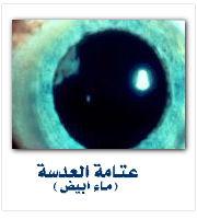 متلازمة ستكلر Cataract