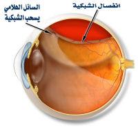 متلازمة ستكلر Retinal%20detachment2