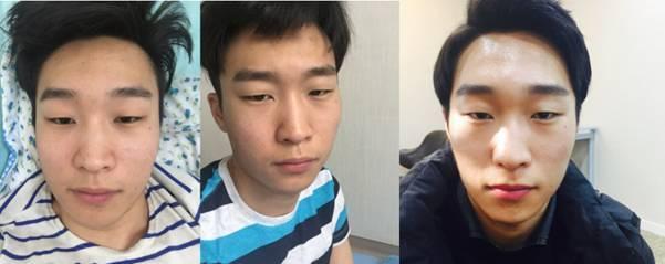 男士专业的眼部整形一定要选择韩国DA整形医院男士眼部整形 006NSs8ngy1fqmgvsoudpj30gp06nq38
