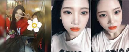 韩国DA整形医院眼、鼻、脂肪填充手术给了我高冷女神颜 Bbac0064gy1frfhlovedej20c204v0st