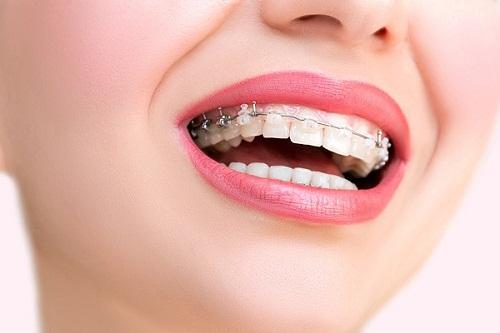 Niềng răng 3 tháng sau sẽ như thế nào? Nieng-rang-1-ham-co-duoc-khong-1