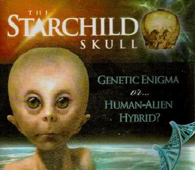Découverte d'un enfant alien au Pérou? 86437620g1ld0