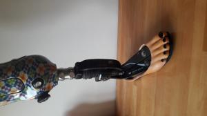 Personnalisation de La prothèse Mini_84935520170718201247