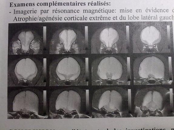 Hydrocéphalie majeure et encéphalopathie hypertensive  - Page 2 933704010120091327