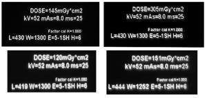 exposition lors de radiographies Mini_33441820110329DosesmGyRadios